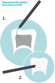 Clinica-Dental-Palmaplanas-Endodoncias