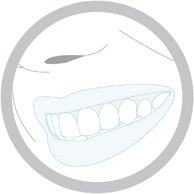 Estética Dental Blanqueamiento