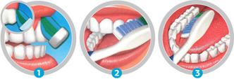 Clinica-Dental-Palmaplanas-Tecnicas-del -Cepillado 1