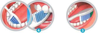 Clinica-Dental-Palmaplanas-Tecnicas-del -Cepillado 2