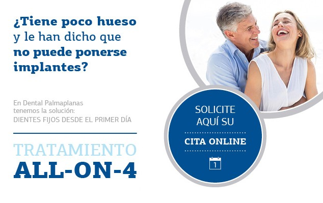ALL-ON-4_Implantes-Dentales-Palma-Inca-Manacor-Ibiza