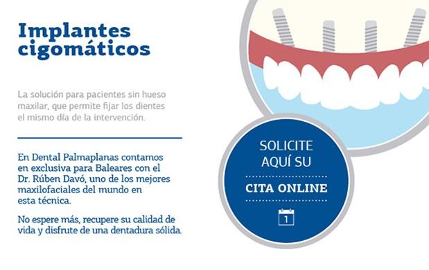 Implantes-cigomáticos-palma-inca-manacor-ibiza