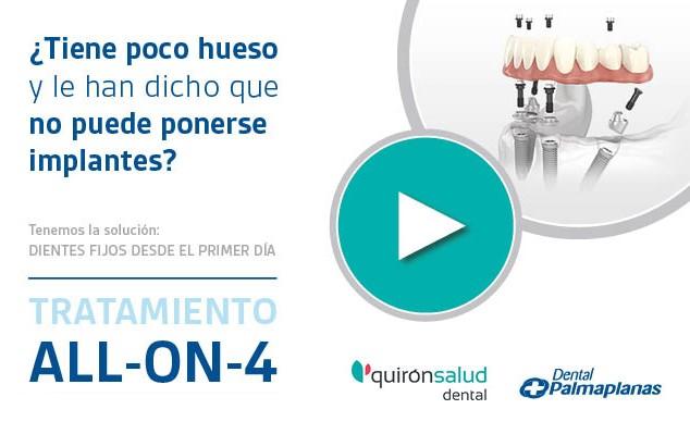 All-on-4-Quirónsalud-dental-Dental-Palmaplanas